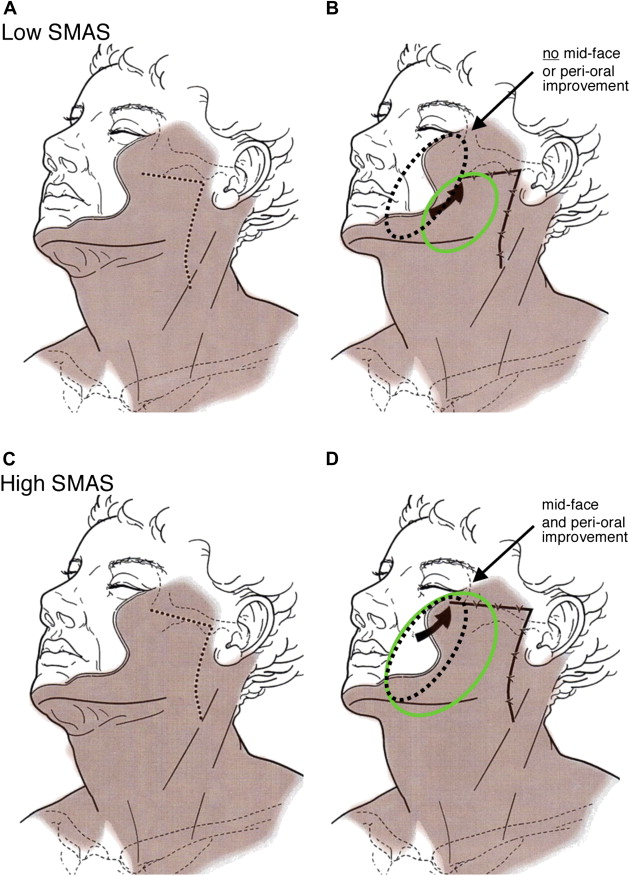 High SMAS Facelift: Combined Single Flap Lifting of the ...